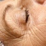 acupunctuur gezichtsbehandeling