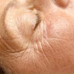 acupunctuur gezichtsverjonging