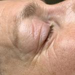 cosmetische acupunctuur gezichtsbehandeling
