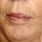 cosmetische acupunctuur resultaat