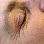 cosmetische acupunctuur resultaten